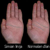 simianlinehand